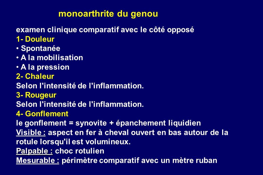 monoarthrite du genou examen clinique comparatif avec le côté opposé 1- Douleur Spontanée A la mobilisation A la pression 2- Chaleur Selon l'intensité