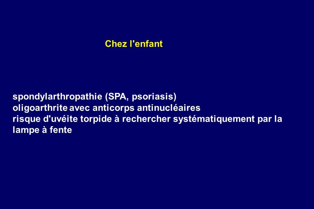 spondylarthropathie (SPA, psoriasis) oligoarthrite avec anticorps antinucléaires risque d'uvéite torpide à rechercher systématiquement par la lampe à