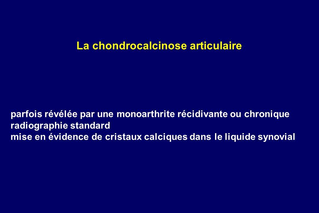 parfois révélée par une monoarthrite récidivante ou chronique radiographie standard mise en évidence de cristaux calciques dans le liquide synovial La