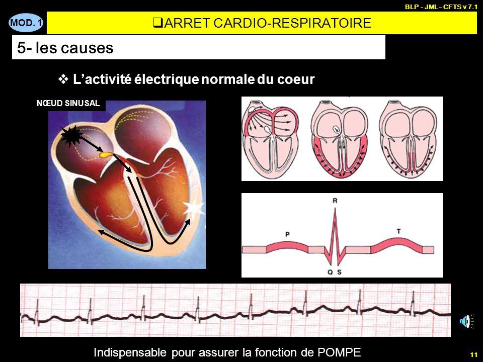 MOD. 1 BLP - JML - CFTS v 7.1 10 BUT : Comprendre pourquoi le cœur nassure plus sa fonction de POMPE (plus déjection de sang) MOYEN : Analyser lactivi
