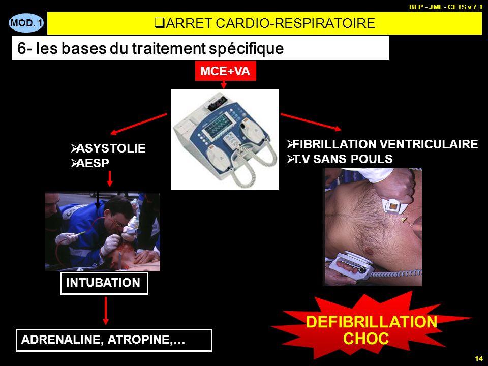 MOD. 1 BLP - JML - CFTS v 7.1 13 La FIBRILLATION VENTRICULAIRE : cause la plus fréquente des ACR (50% des cas) Doit être traitée le plus tôt possible