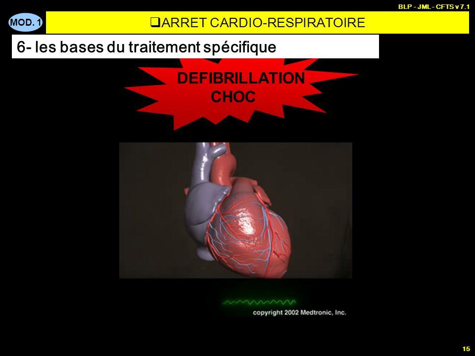 MOD. 1 BLP - JML - CFTS v 7.1 14 ASYSTOLIE AESP FIBRILLATION VENTRICULAIRE T.V SANS POULS CHOC INTUBATION ADRENALINE, ATROPINE,… DEFIBRILLATION MCE+VA