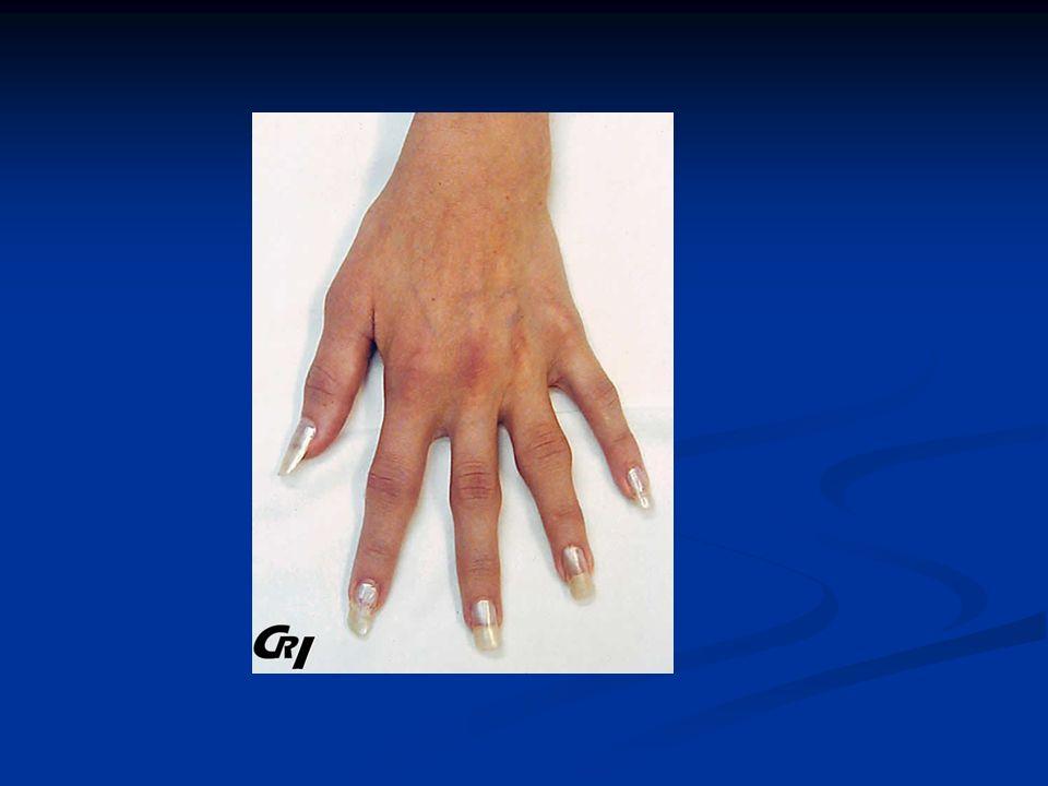 E - Une radiographie du rachis lombaire et du bassin en incidence postéro-antérieure debout est pratiquée.