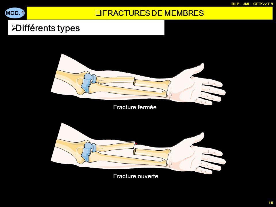 MOD. 1 BLP - JML - CFTS v 7.9 15 Différents types FRACTURES DE MEMBRES Fracture fermée Fracture ouverte