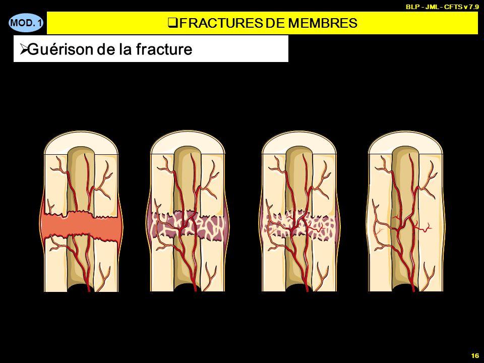 MOD. 1 BLP - JML - CFTS v 7.9 16 Guérison de la fracture FRACTURES DE MEMBRES