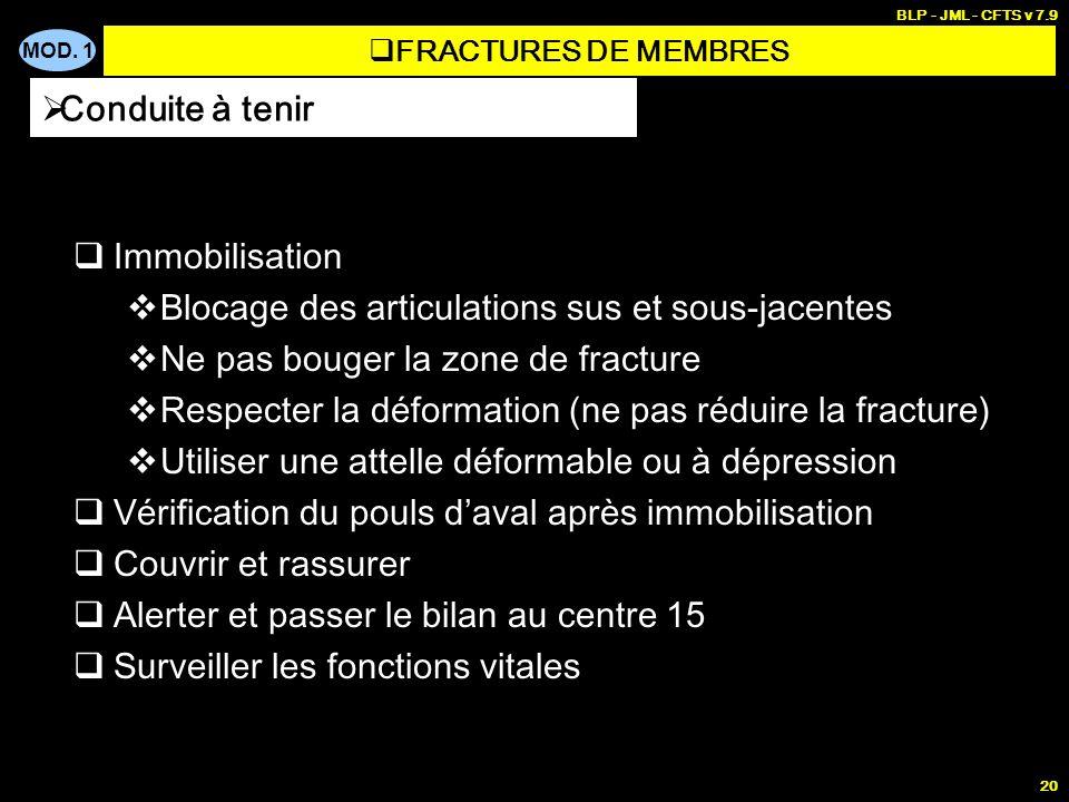 MOD. 1 BLP - JML - CFTS v 7.9 20 Immobilisation Blocage des articulations sus et sous-jacentes Ne pas bouger la zone de fracture Respecter la déformat