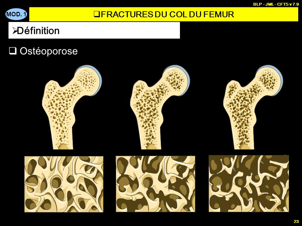 MOD. 1 BLP - JML - CFTS v 7.9 23 Ostéoporose Définition FRACTURES DU COL DU FEMUR