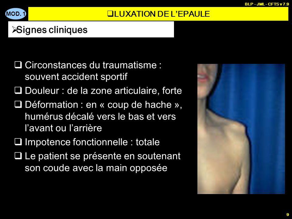 MOD. 1 BLP - JML - CFTS v 7.9 9 Circonstances du traumatisme : souvent accident sportif Douleur : de la zone articulaire, forte Déformation : en « cou