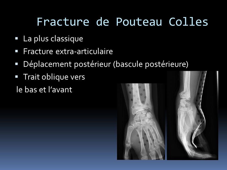 Fracture de Pouteau Colles La plus classique Fracture extra-articulaire Déplacement postérieur (bascule postérieure) Trait oblique vers le bas et lava