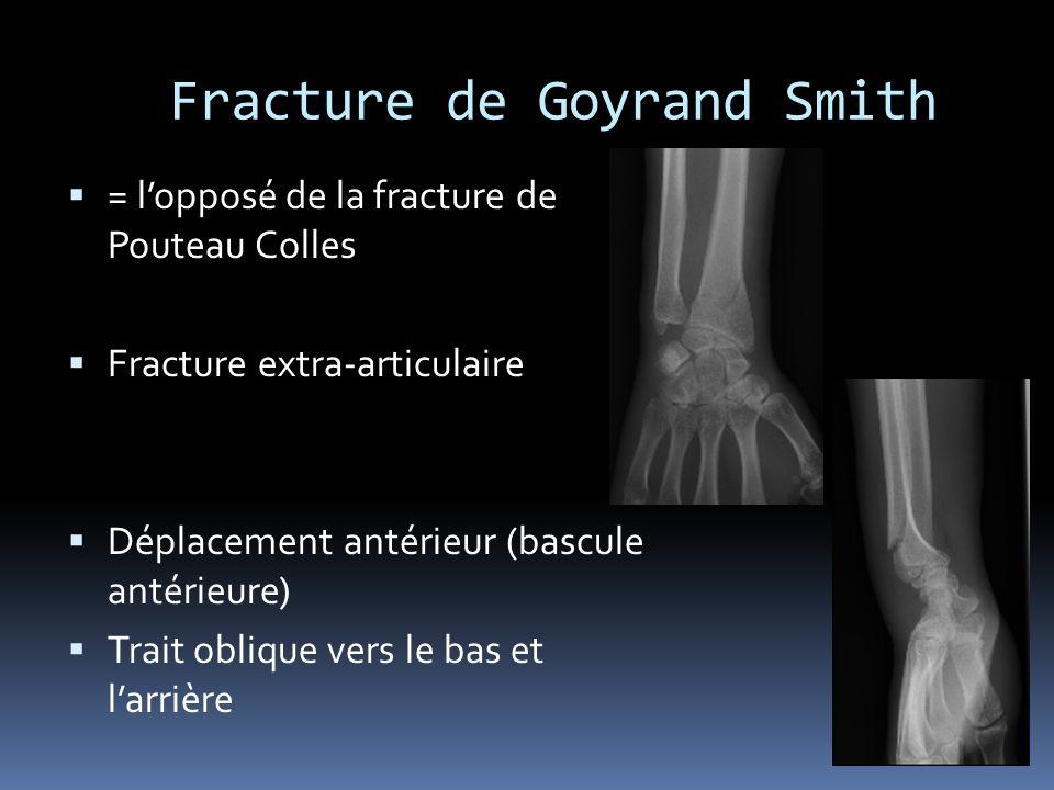 Fracture de Goyrand Smith = lopposé de la fracture de Pouteau Colles Fracture extra-articulaire Déplacement antérieur (bascule antérieure) Trait obliq