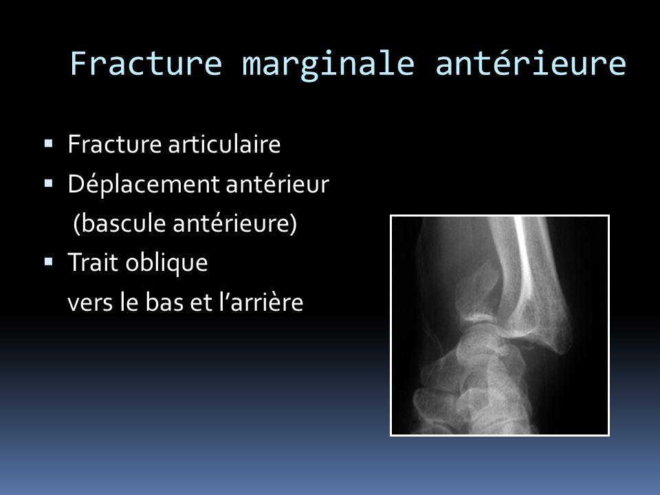 Fracture marginale antérieure Fracture articulaire Déplacement antérieur (bascule antérieure) Trait oblique vers le bas et larrière