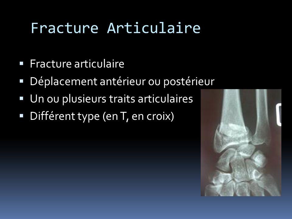 Fracture Articulaire Fracture articulaire Déplacement antérieur ou postérieur Un ou plusieurs traits articulaires Différent type (en T, en croix)