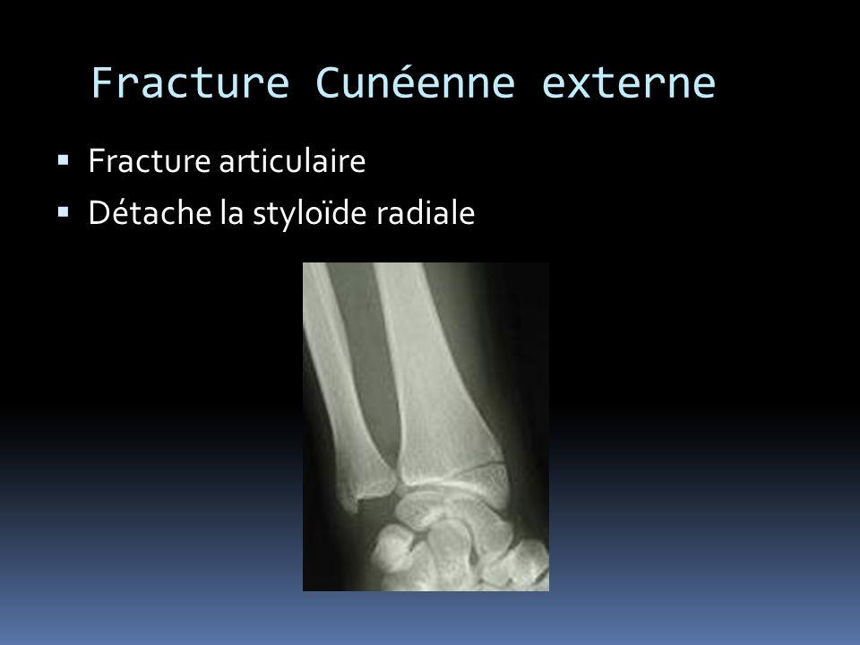 Fracture Cunéenne externe Fracture articulaire Détache la styloïde radiale