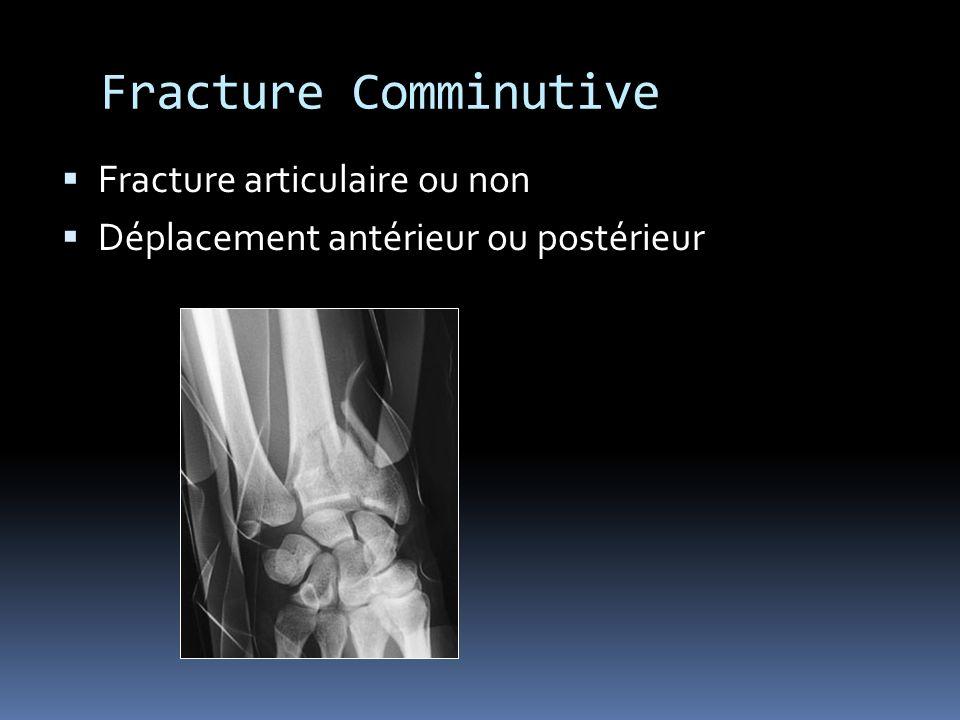 Fracture Comminutive Fracture articulaire ou non Déplacement antérieur ou postérieur