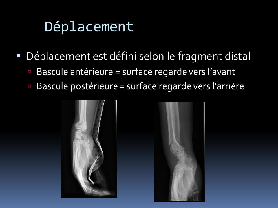 Déplacement Déplacement est défini selon le fragment distal Bascule antérieure = surface regarde vers lavant Bascule postérieure = surface regarde ver