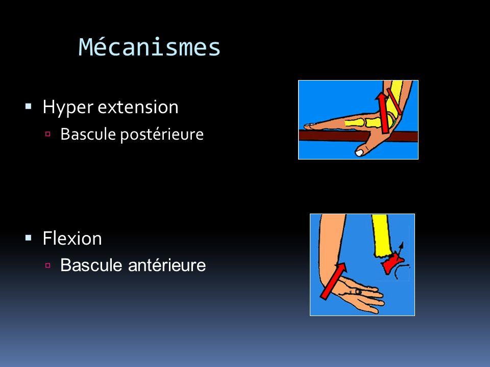 Mécanismes Hyper extension Bascule postérieure Flexion Bascule antérieure