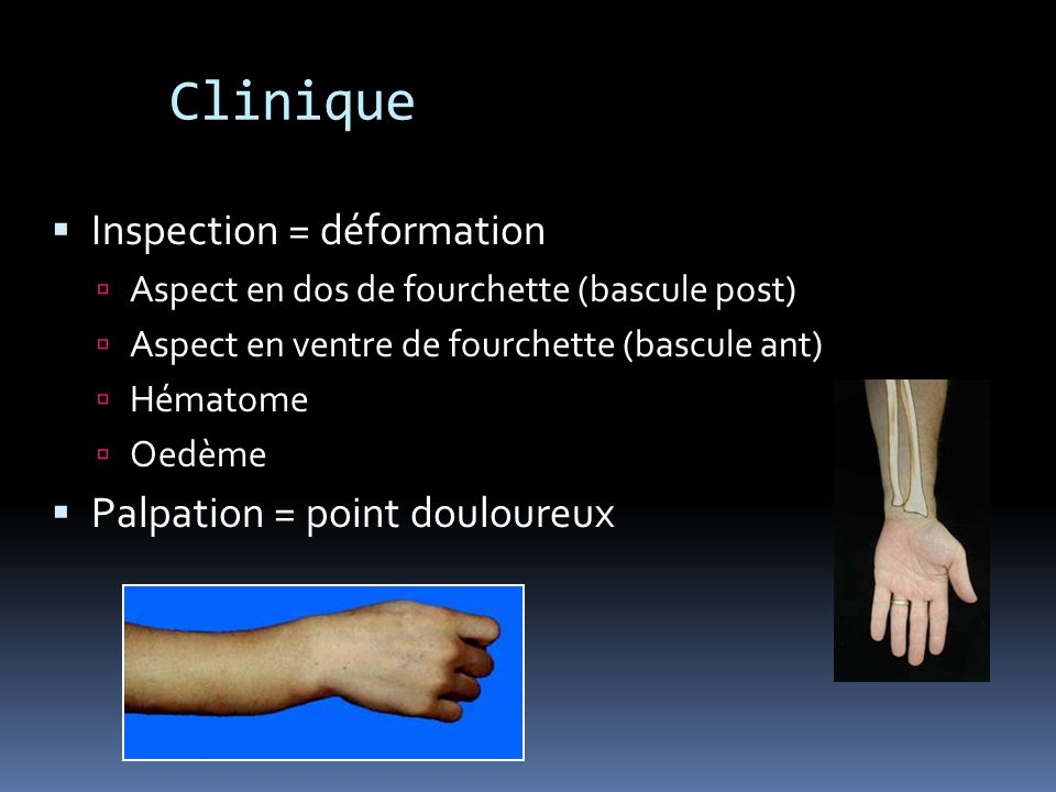 Clinique Inspection = déformation Aspect en dos de fourchette (bascule post) Aspect en ventre de fourchette (bascule ant) Hématome Oedème Palpation =