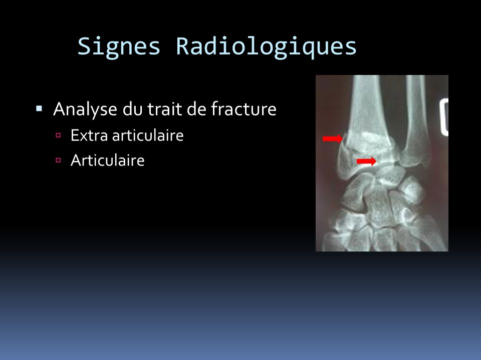 Signes Radiologiques Analyse du trait de fracture Extra articulaire Articulaire