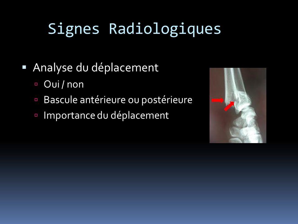 Signes Radiologiques Analyse du déplacement Oui / non Bascule antérieure ou postérieure Importance du déplacement