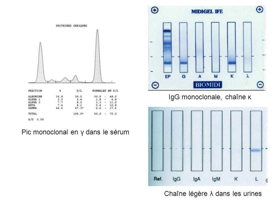 IgG monoclonale, chaîne κ Chaîne légère λ dans les urines Pic monoclonal en γ dans le sérum