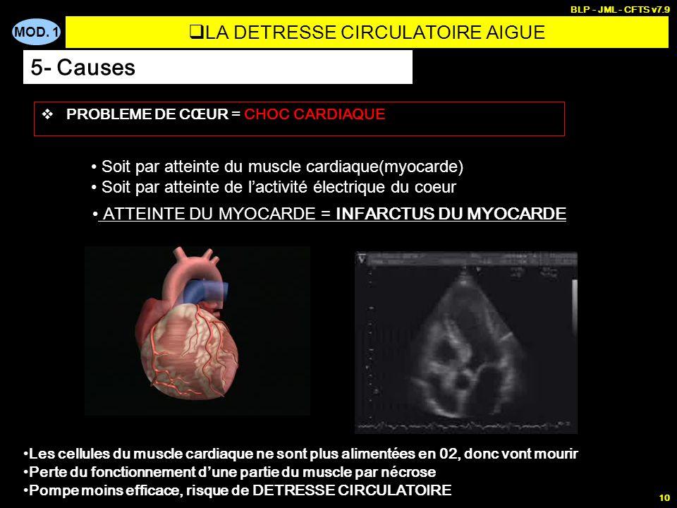 MOD. 1 BLP - JML - CFTS v7.9 10 PROBLEME DE CŒUR = CHOC CARDIAQUE Soit par atteinte du muscle cardiaque(myocarde) Soit par atteinte de lactivité élect
