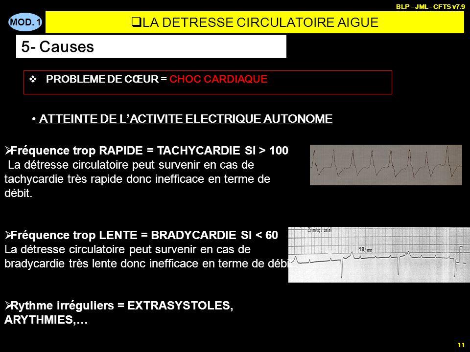 MOD. 1 BLP - JML - CFTS v7.9 11 ATTEINTE DE L ACTIVITE ELECTRIQUE AUTONOME Fréquence trop RAPIDE = TACHYCARDIE SI > 100 La détresse circulatoire peut