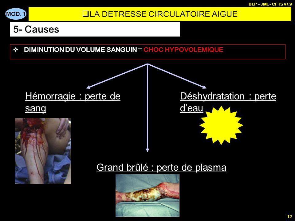 MOD. 1 BLP - JML - CFTS v7.9 12 DIMINUTION DU VOLUME SANGUIN = CHOC HYPOVOLEMIQUE Hémorragie : perte de sang Déshydratation : perte deau Grand brûlé :