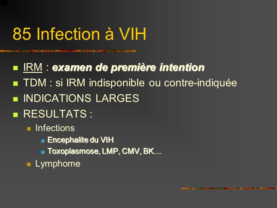 85 Infection à VIH examen de première intention IRM : examen de première intention TDM : si IRM indisponible ou contre-indiquée INDICATIONS LARGES RESULTATS : Infections Encephalite du VIH Encephalite du VIH Toxoplasmose, LMP, CMV, BK… Toxoplasmose, LMP, CMV, BK… Lymphome