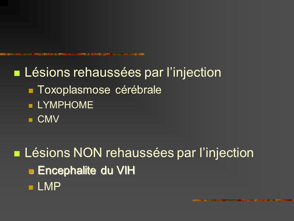 Lésions rehaussées par linjection Toxoplasmose cérébrale LYMPHOME CMV Lésions NON rehaussées par linjection Encephalite du VIH Encephalite du VIH LMP