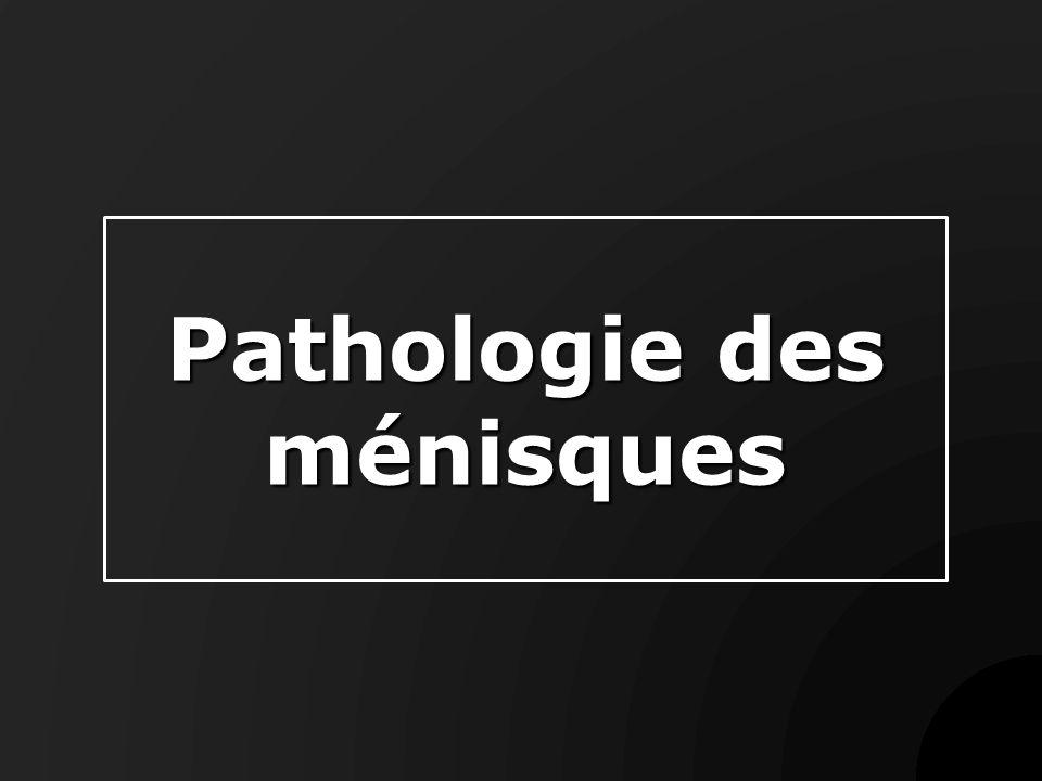 Rq : Lésions du ménisque externe On peut voir les mêmes lésions que du coté interne Fissures transversales plus fréquentes Lésion malformative : ménisque discoide kystes