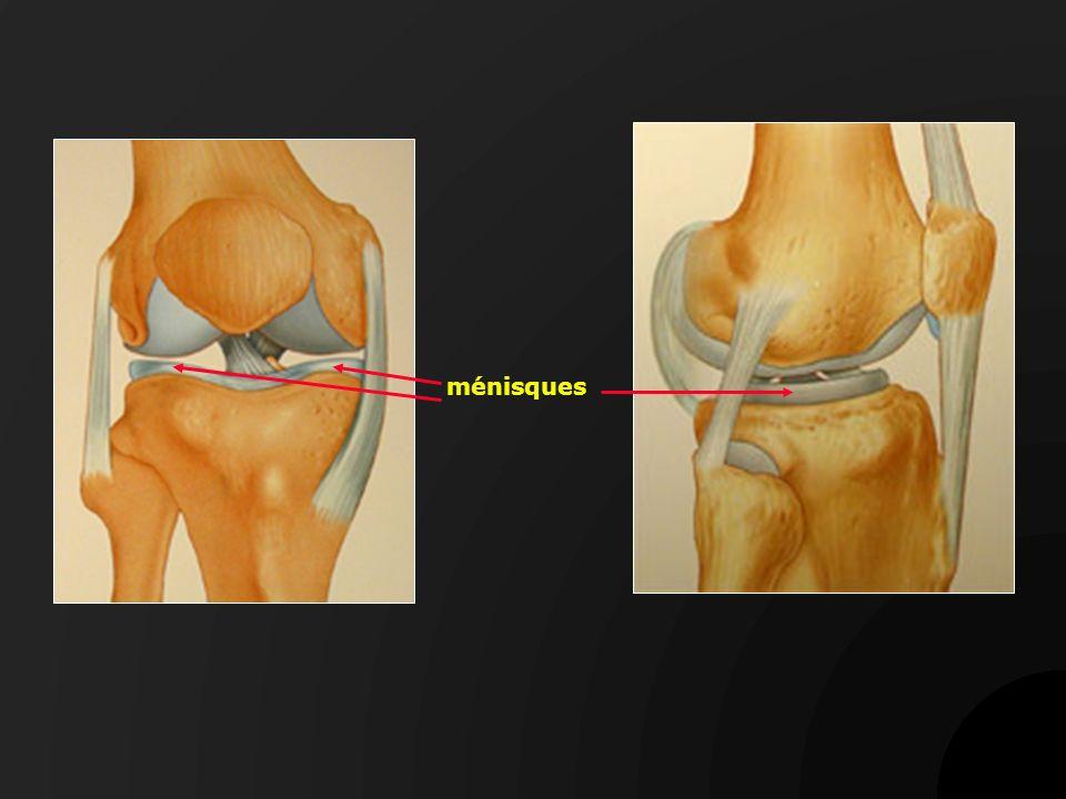 Kyste méniscal interne et arthrose Prothèse du genou et ablation du kyste