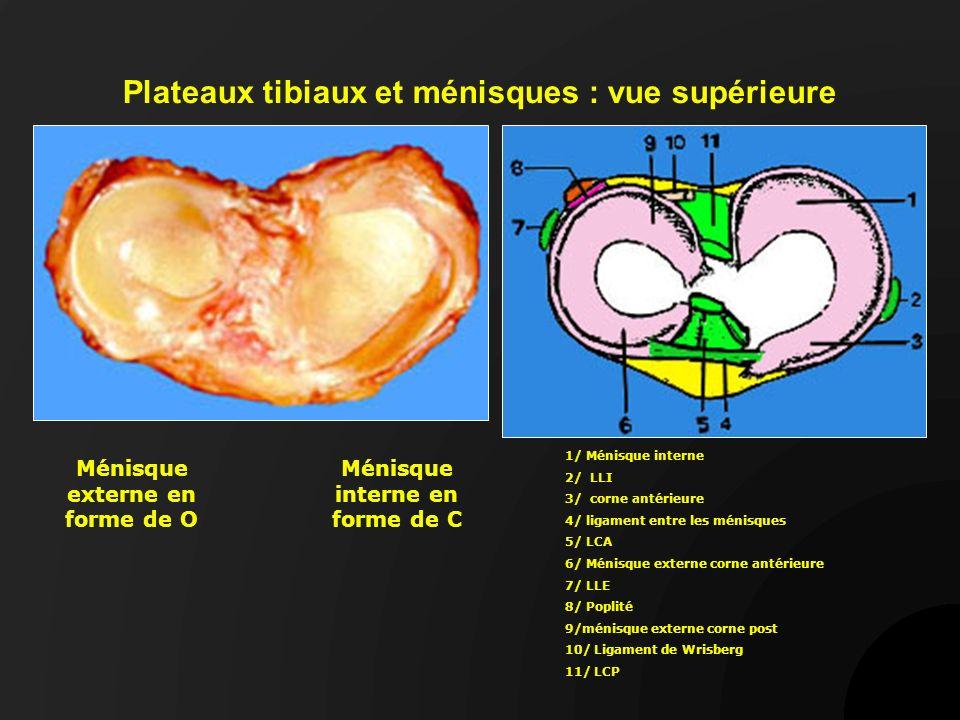 Asymétrie des condyles et des plateaux côté interne côtéexterne côté externe Les ménisques contribuent à rendre concaves les glènes tibiales (surface à peine concave pour le côté interne et convexe pour le côté externe) LCA Ménisques
