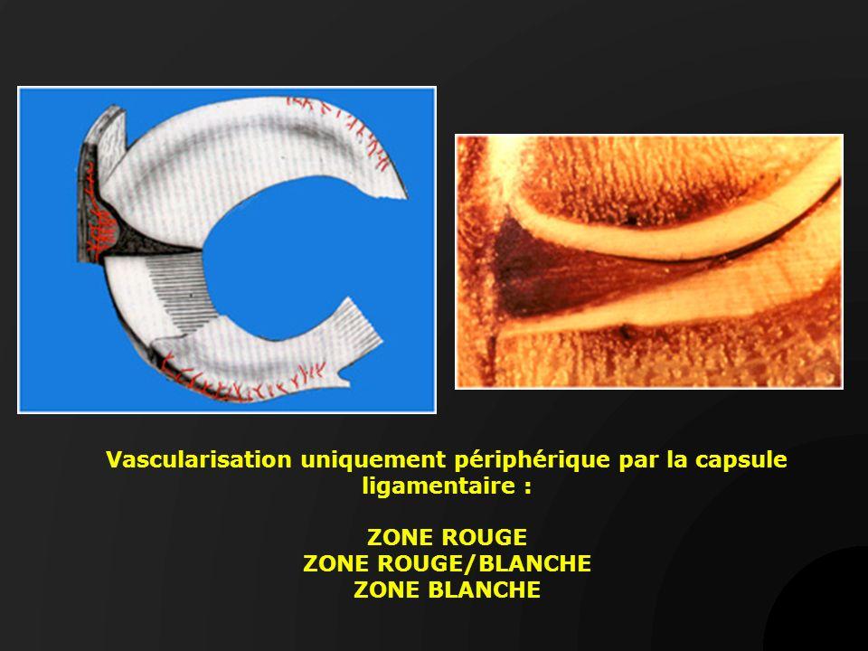 Les lésions horizontales Vision arthroscopique de fentes horizontales Clivage horizontal Documents B Moyen