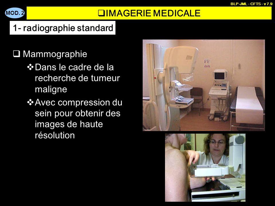 MOD. 2 BLP-JML - CFTS - v 7.9 IMAGERIE MEDICALE Mammographie Dans le cadre de la recherche de tumeur maligne Avec compression du sein pour obtenir des