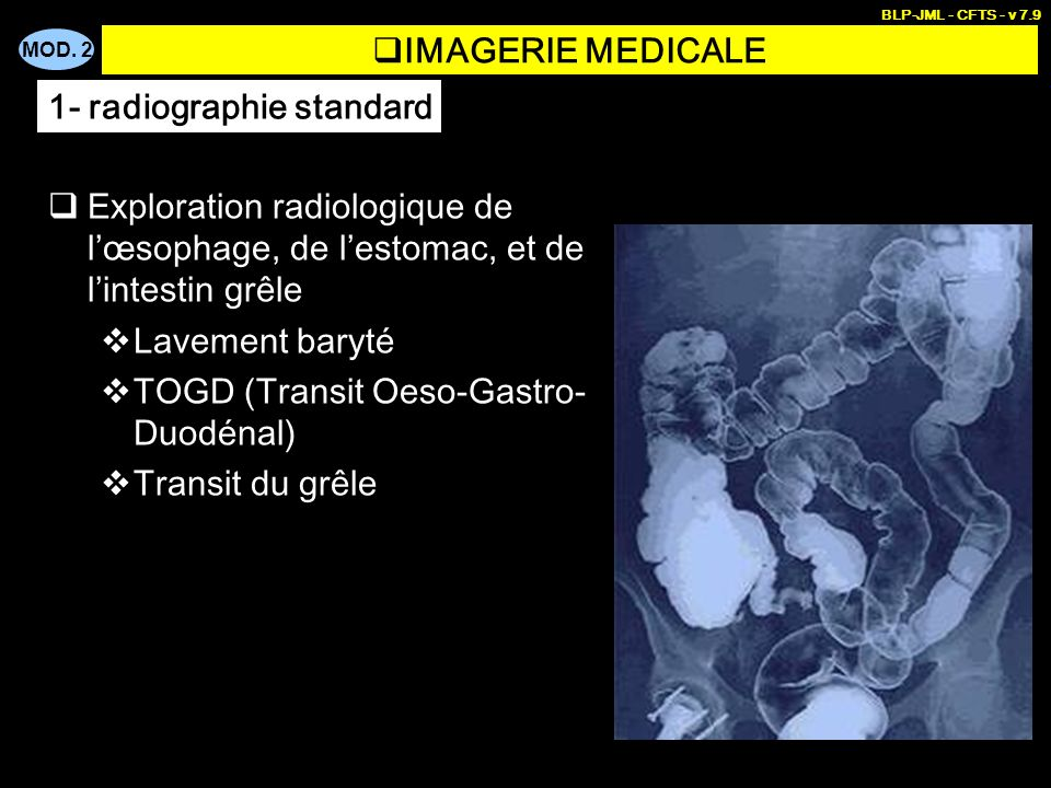 MOD. 2 BLP-JML - CFTS - v 7.9 IMAGERIE MEDICALE Exploration radiologique de lœsophage, de lestomac, et de lintestin grêle Lavement baryté TOGD (Transi