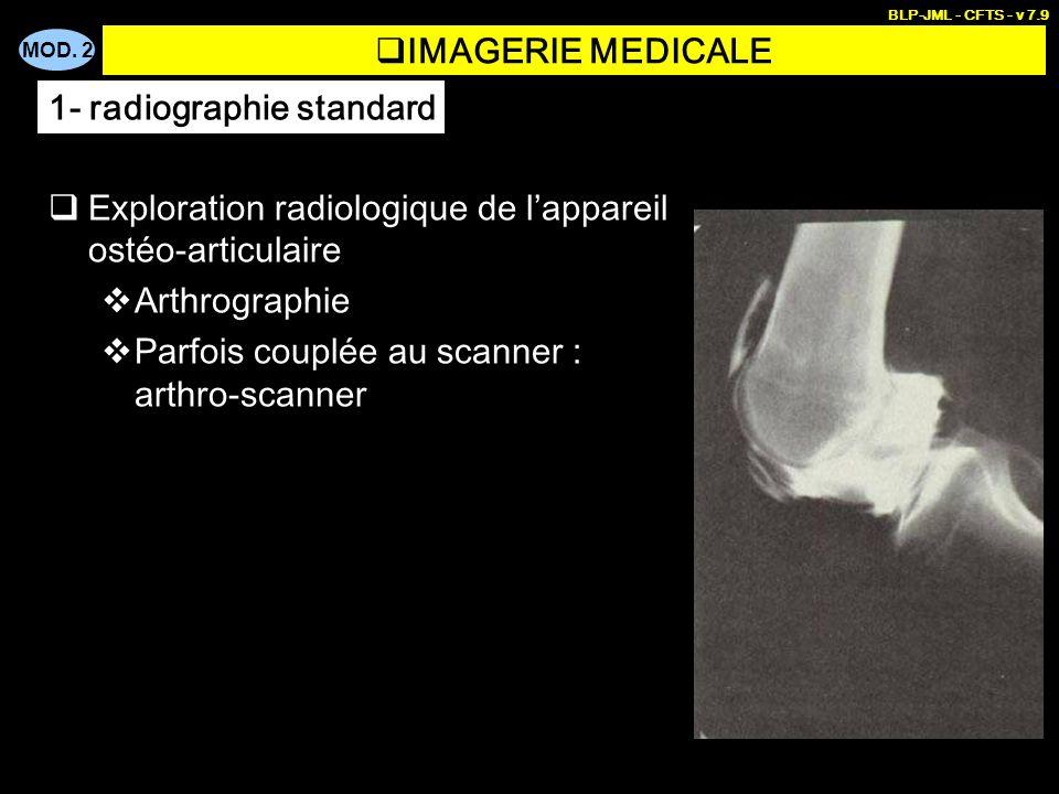 MOD. 2 BLP-JML - CFTS - v 7.9 IMAGERIE MEDICALE Exploration radiologique de lappareil ostéo-articulaire Arthrographie Parfois couplée au scanner : art
