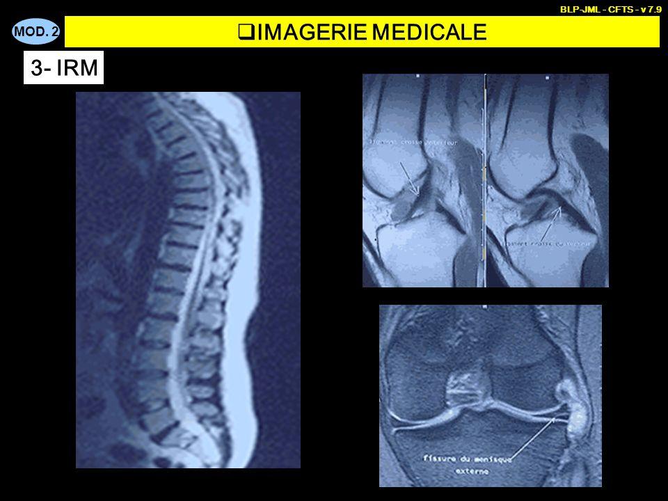 MOD. 2 BLP-JML - CFTS - v 7.9 IMAGERIE MEDICALE 3- IRM