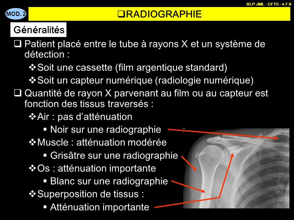 MOD. 2 BLP-JML - CFTS - v 7.9 Patient placé entre le tube à rayons X et un système de détection : Soit une cassette (film argentique standard) Soit un