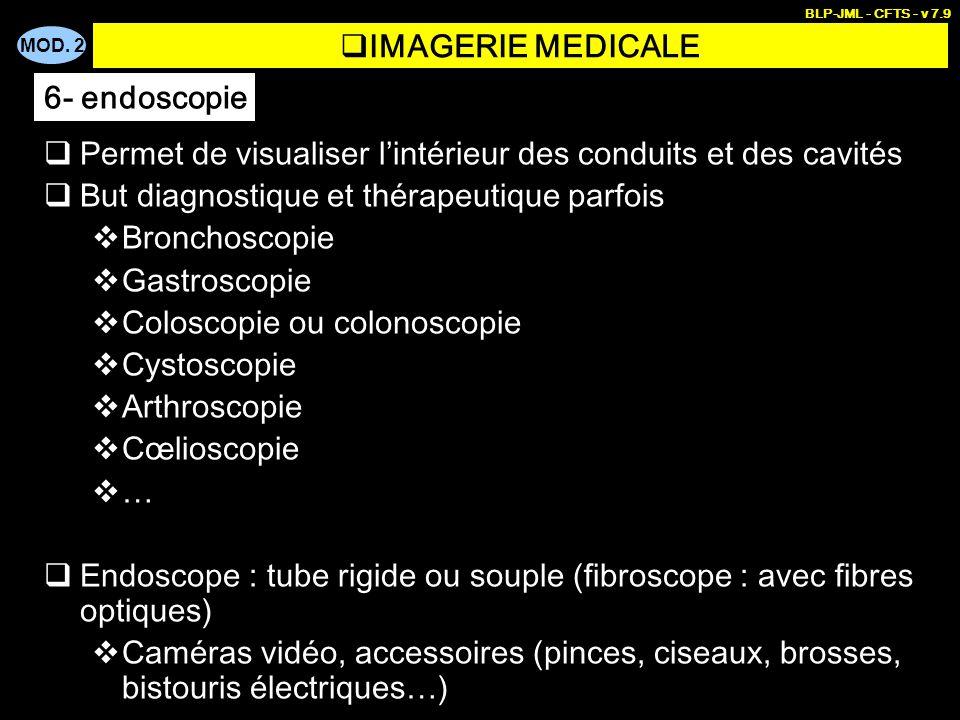 MOD. 2 BLP-JML - CFTS - v 7.9 IMAGERIE MEDICALE Permet de visualiser lintérieur des conduits et des cavités But diagnostique et thérapeutique parfois