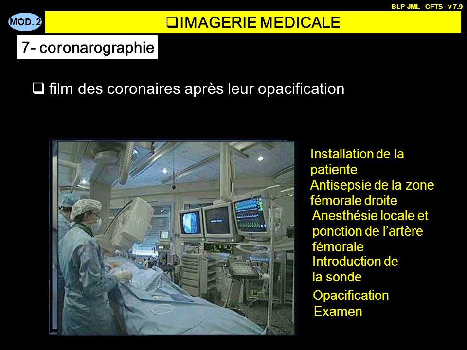 MOD. 2 BLP-JML - CFTS - v 7.9 film des coronaires après leur opacification Installation de la patiente Antisepsie de la zone fémorale droite Anesthési