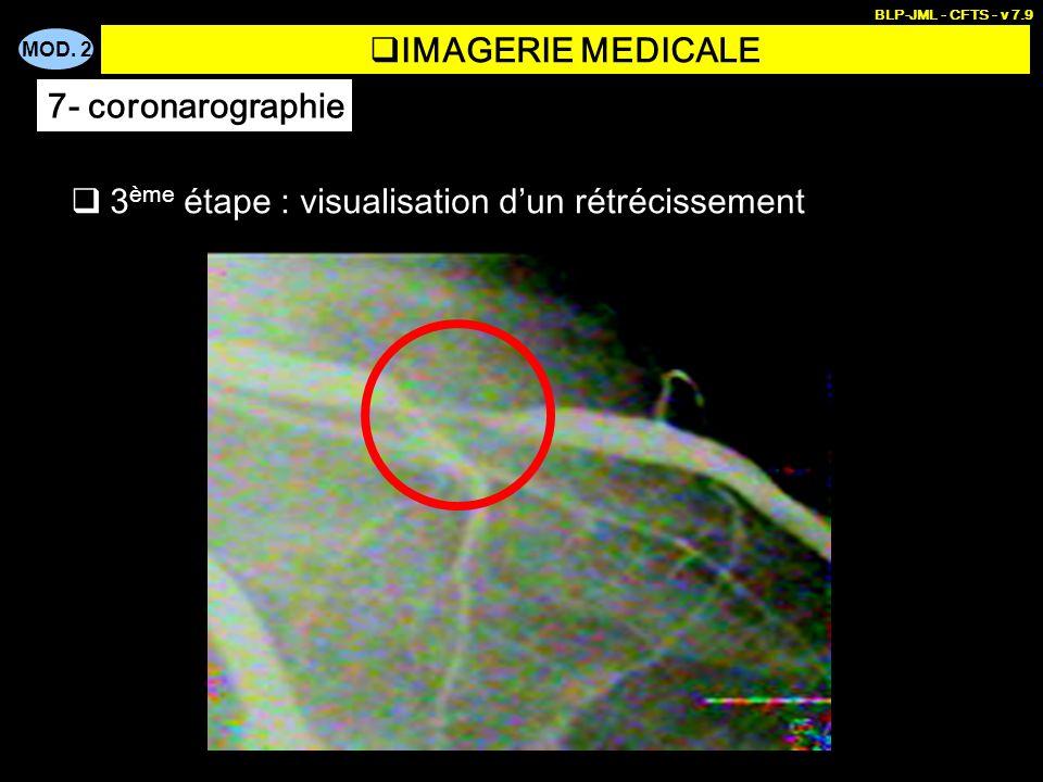 MOD. 2 BLP-JML - CFTS - v 7.9 3 ème étape : visualisation dun rétrécissement IMAGERIE MEDICALE 7- coronarographie