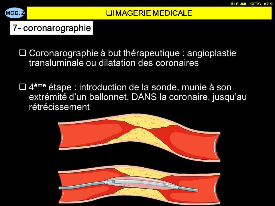 MOD. 2 BLP-JML - CFTS - v 7.9 Coronarographie à but thérapeutique : angioplastie transluminale ou dilatation des coronaires 4 ème étape : introduction