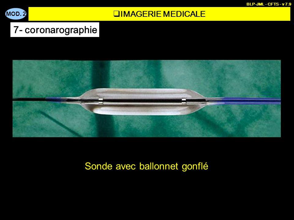 MOD. 2 BLP-JML - CFTS - v 7.9 Sonde avec ballonnet gonflé IMAGERIE MEDICALE 7- coronarographie