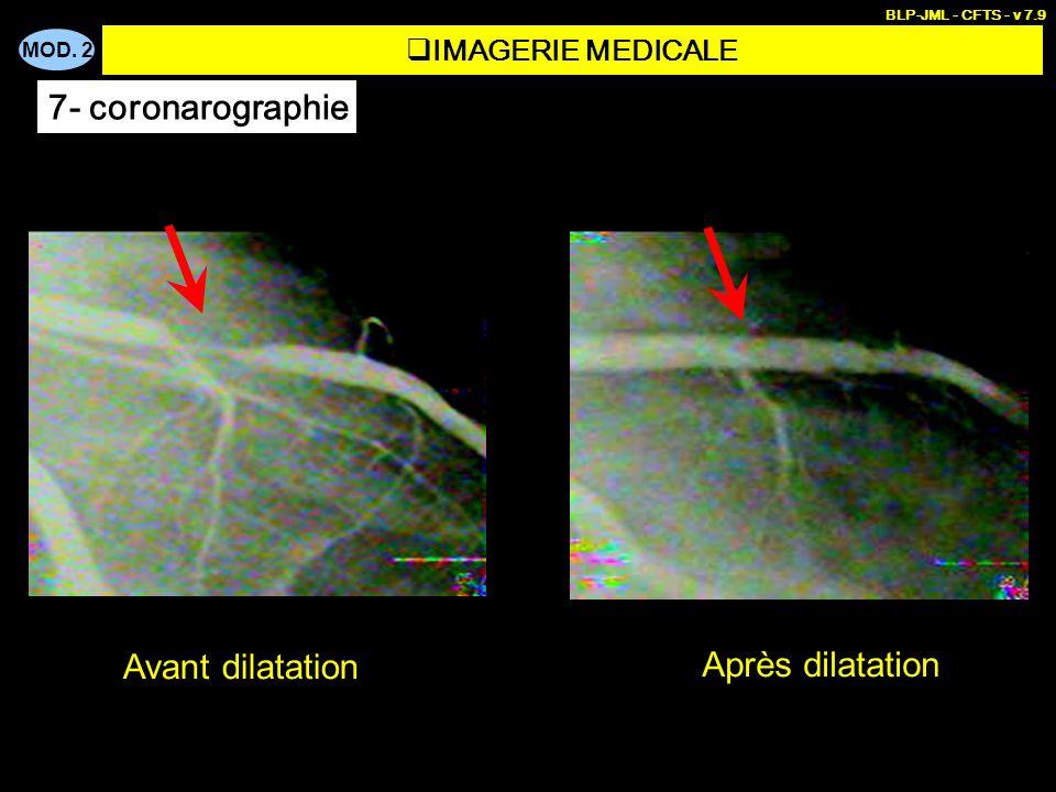 MOD. 2 BLP-JML - CFTS - v 7.9 Avant dilatation Après dilatation IMAGERIE MEDICALE 7- coronarographie
