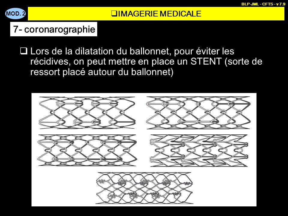MOD. 2 BLP-JML - CFTS - v 7.9 Lors de la dilatation du ballonnet, pour éviter les récidives, on peut mettre en place un STENT (sorte de ressort placé