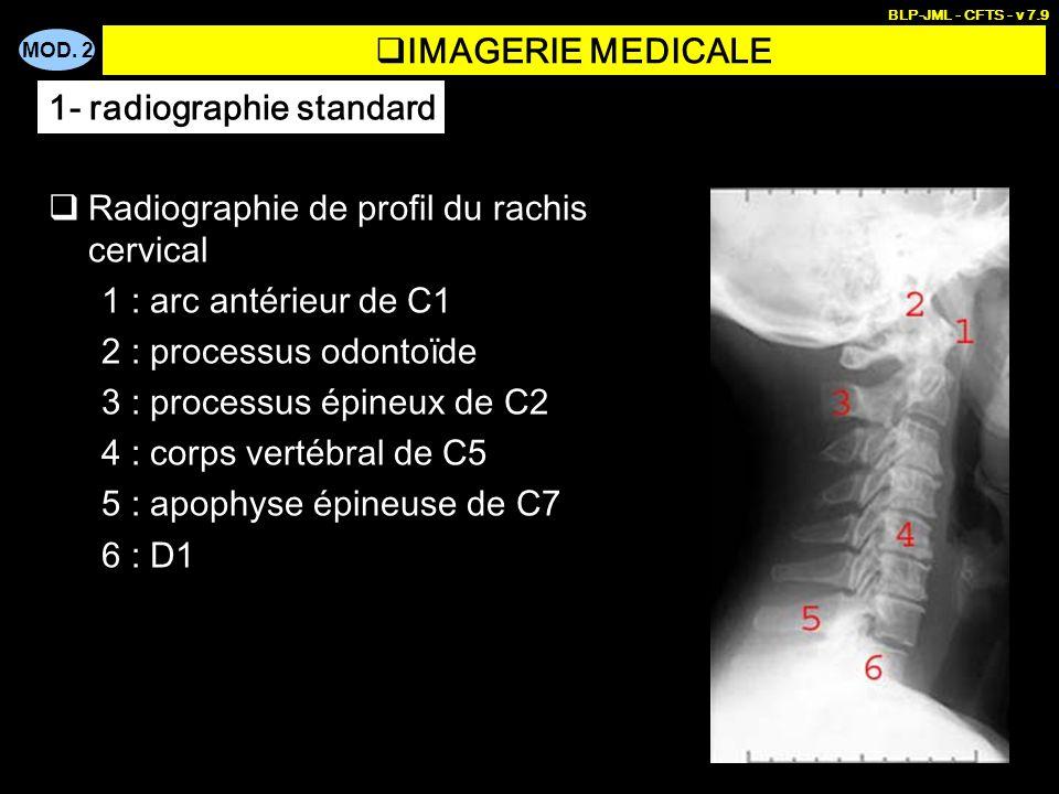 MOD. 2 BLP-JML - CFTS - v 7.9 IMAGERIE MEDICALE 1- radiographie standard Radiographie de profil du rachis cervical 1 : arc antérieur de C1 2 : process
