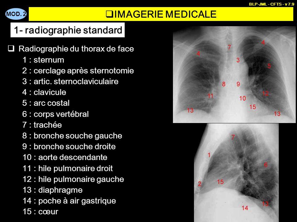 MOD. 2 BLP-JML - CFTS - v 7.9 IMAGERIE MEDICALE Radiographie du thorax de face 1 : sternum 2 : cerclage après sternotomie 3 : artic. sternoclaviculair