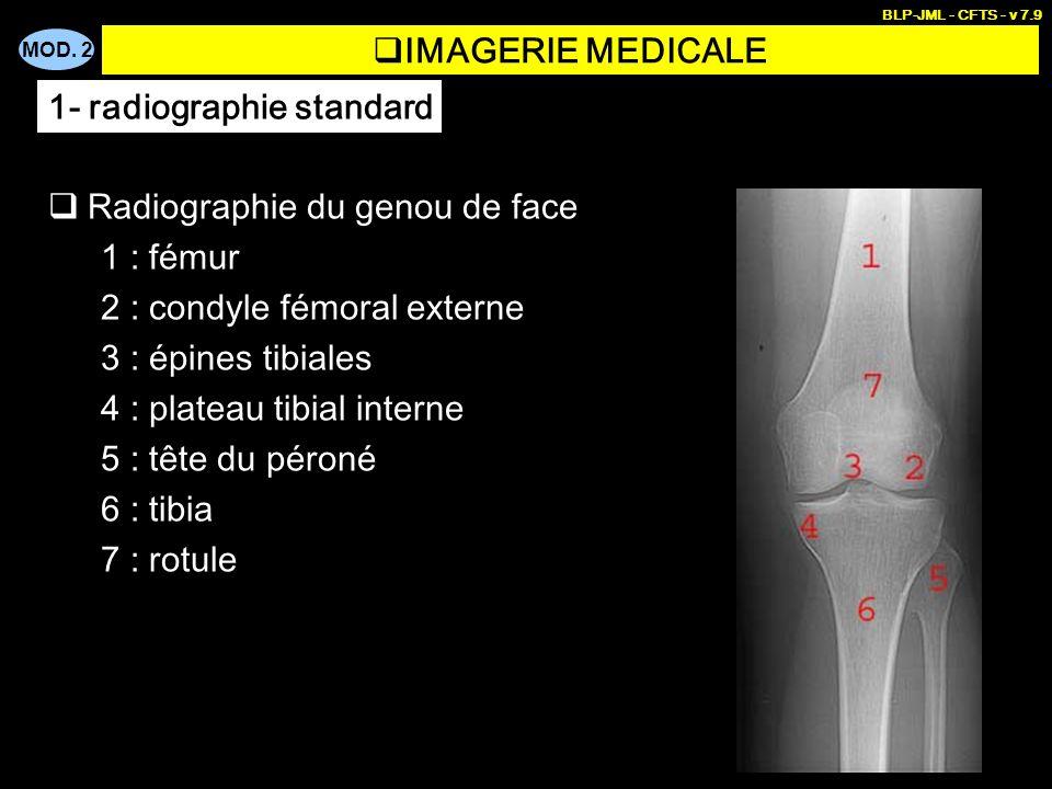 MOD. 2 BLP-JML - CFTS - v 7.9 IMAGERIE MEDICALE Radiographie du genou de face 1 : fémur 2 : condyle fémoral externe 3 : épines tibiales 4 : plateau ti
