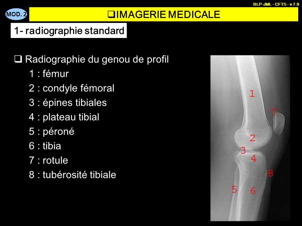 MOD. 2 BLP-JML - CFTS - v 7.9 IMAGERIE MEDICALE Radiographie du genou de profil 1 : fémur 2 : condyle fémoral 3 : épines tibiales 4 : plateau tibial 5