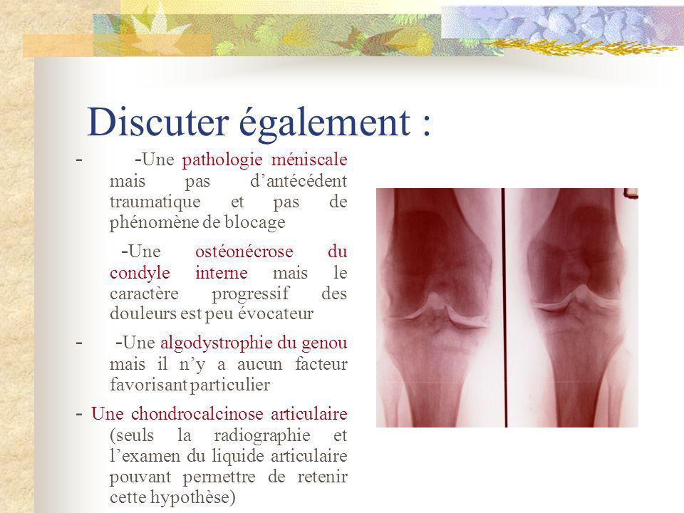 Discuter également : - - Une pathologie méniscale mais pas dantécédent traumatique et pas de phénomène de blocage - Une ostéonécrose du condyle intern